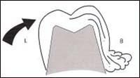 Цементировка коронки