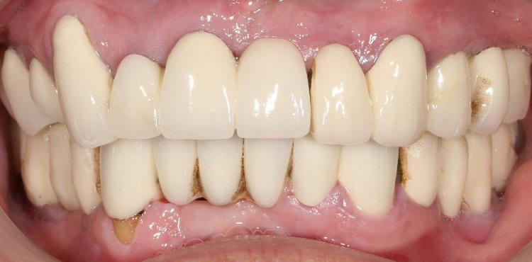 Протезирование верхней челюсти пациента металлокерамическими коронками на имплантатах, устранение негативных последствий базальной имплантации