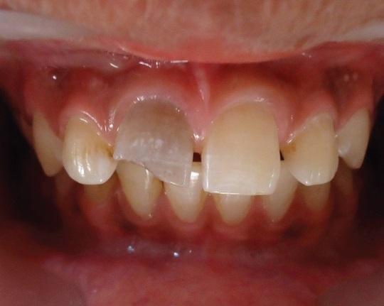 Клинический случай ревитализации зуба с использованием обогащенной фибрином плазмы