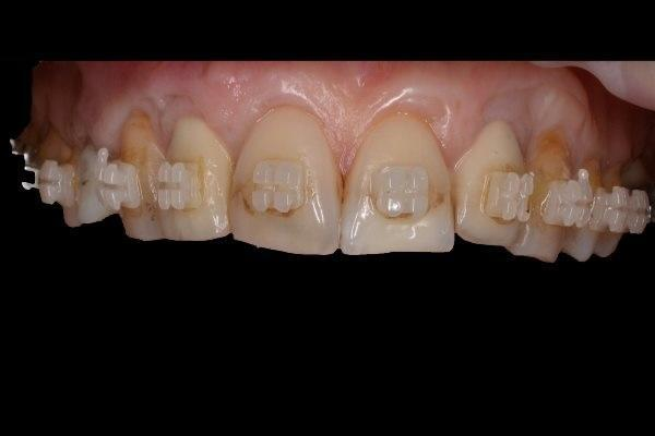 Одномоментная имплантация и немедленная нагрузка в области латеральных резцов верхней челюсти