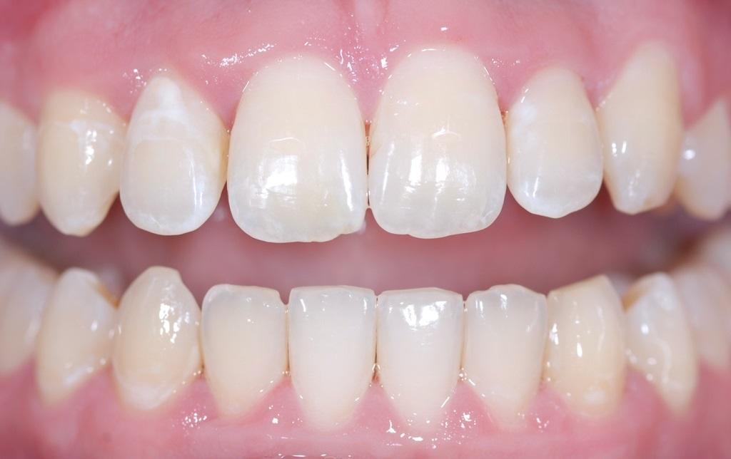 сравнение отбеливания зубов