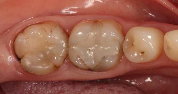 Функциональная и эстетическая реабилитация зубов 3.7, 3.6
