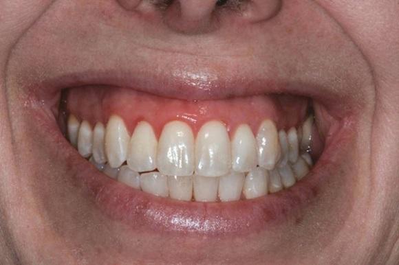 Репозиция губы для коррекции десневой улыбки