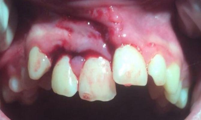 Перелом альвеолярного отростка и экструзивный вывих зубов 11, 12
