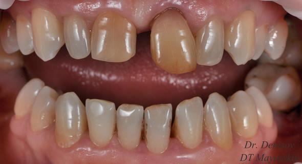 Восстановление гармоничной улыбки и жевательной эффективности при помощи имплантации, керамических реставраций и симметричного расширения щёчных коридоров