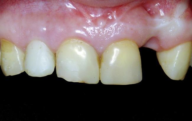 Восстановление эстетичного вида передних зубов