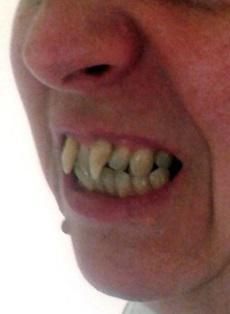 Женщина отсудила у стоматолога 25 тысяч фунтов, после того как он не диагностировал у нее заболевание десен