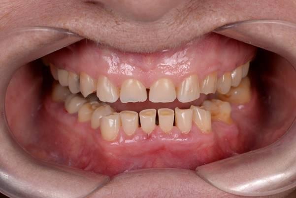 Восстановление эстетики и функции зубов при патологической стираемости цельнокерамическими реставрациями