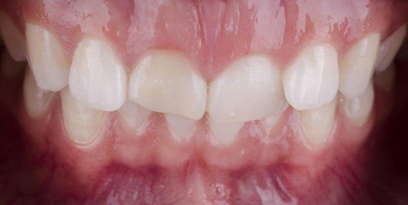 Эстетическая реабилитация керамическими винирами E.max зубов 1.1, 2.1