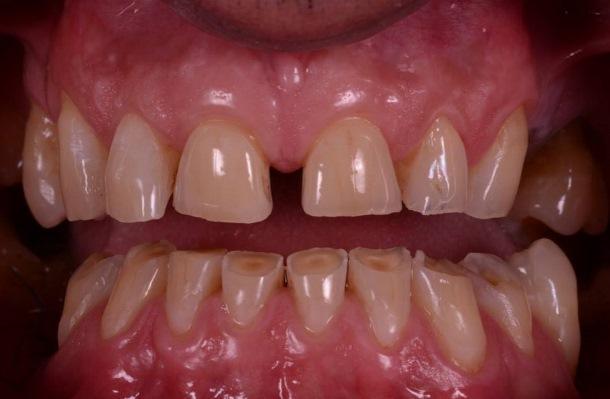 Клинический случай эстетической и функциональной реабилитации пациента со стираемостью зубов