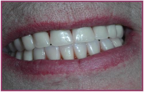 Пациентка Б., 65 лет протезированная перекрывающими протезами на верхней и нижней челюсти.