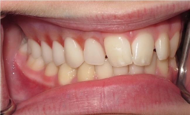 Скуловые имплантаты и небные обтураторы в практике детской стоматологии