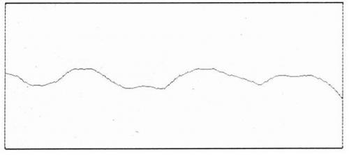 РПГ в области 43 зуба пациента Л., 55 лет, до протезирования (объяснение в тексте).