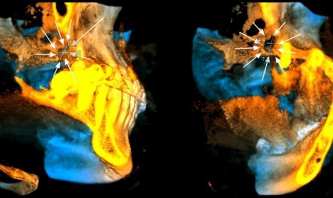 Проведение открытого синус-лифтинга на месте хронического ороантрального сообщения при выраженном костном дефекте дна верхнечелюстной пазухи