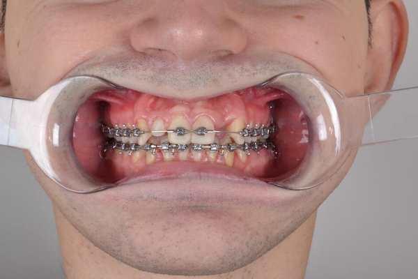 Реабилитация улыбки пациента