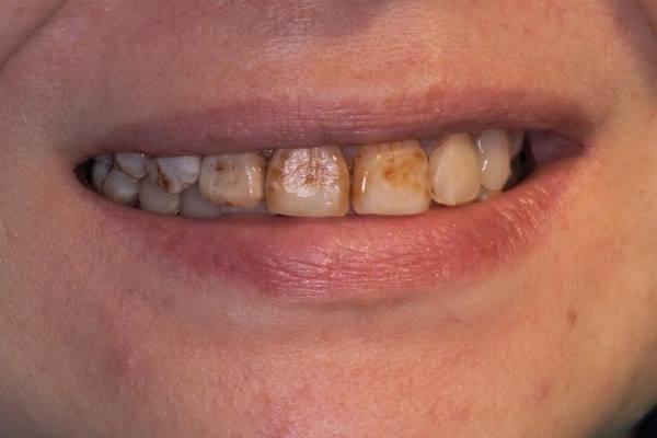 Прямая реставрация в переднем отделе верхней челюсти