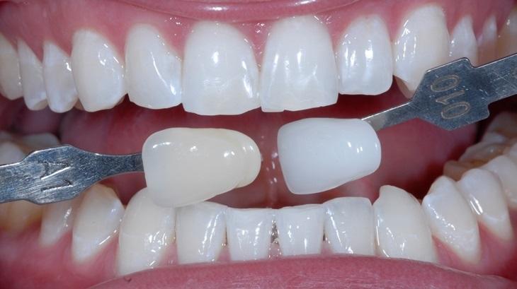 Отбеливание зубов: ответы на многие вопросы