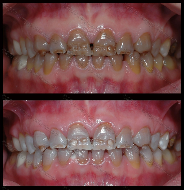 виниры на зубы без обточки отзывы