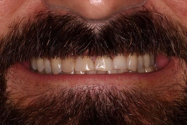Эстетическая реабилитация улыбки при помощи керамических реставраций из дисиликата лития