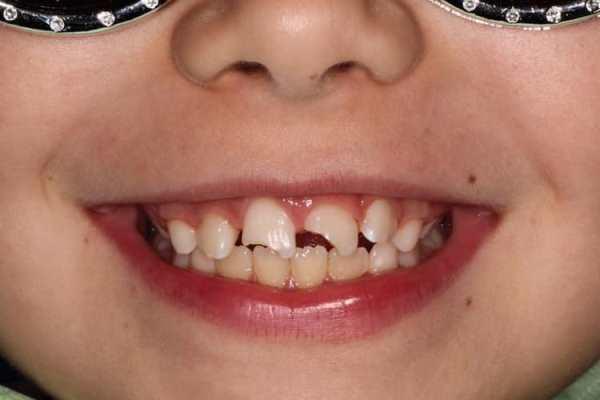 Не осложненная травма 11, 21 зуба