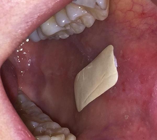 Разработали уникальные клейкие пластыри для лечения ряда заболеваний полости рта