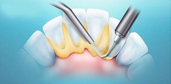 Регулярное удаление зубного камня снижает риск инфекции после тотального эндопротезирования коленного сустава