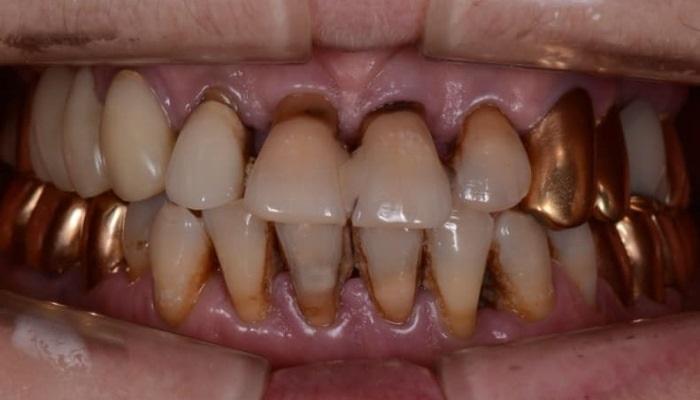 Тотальная стоматологическая реабилитация на имплантатах