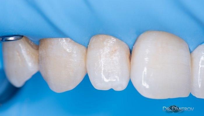 Кариес дентина 12 зуба
