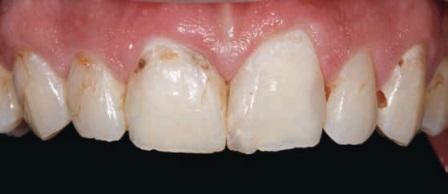 Методика прямых виниров для реставрации фронтальных зубов
