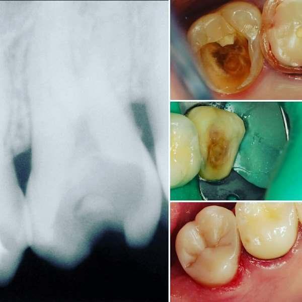 Лечение кариеса 2.7 зуба с применением композитных материалов
