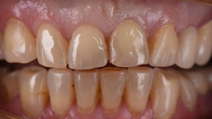 Прямая композитная реставрация зубов 1.1, 2.1, 2.2 после снятия ретейнера