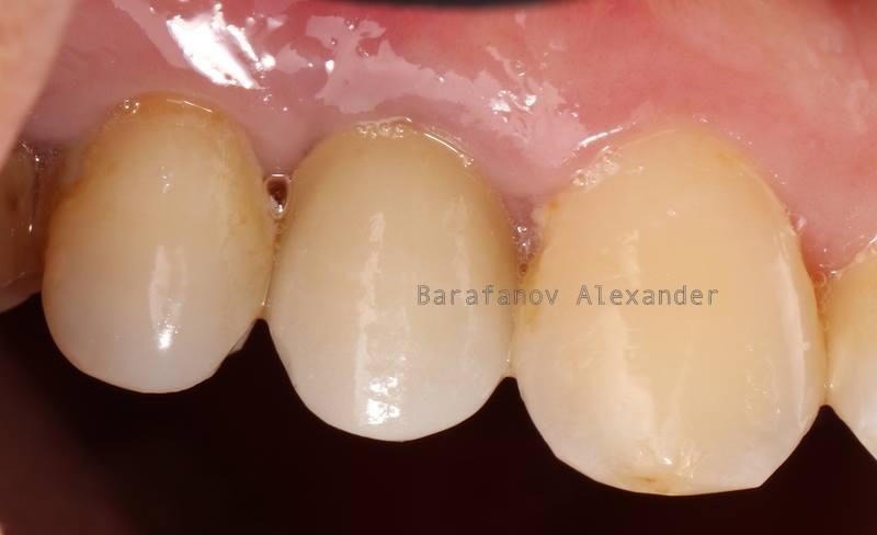 Коронки на зубы ставрополь