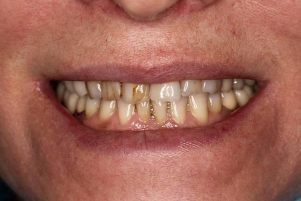 Эстетико-функциональное восстановление 6 передних зубов
