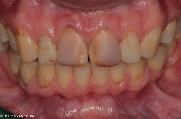 Исправление дисколорита фронтальных зубов при помощи реставраций E.max