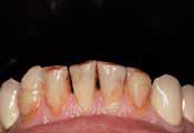 Детальный вид нижних передних зубов до лечения