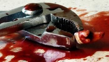 Разгневанный стоматолог вырвал у пациентки все зубы из-за неуплаты его работы