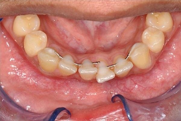 Несъемные рейтенеры не обеспечивают стопроцентной стабильности положения зубов