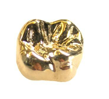 В корзине для пожертвований нашли золотой зуб