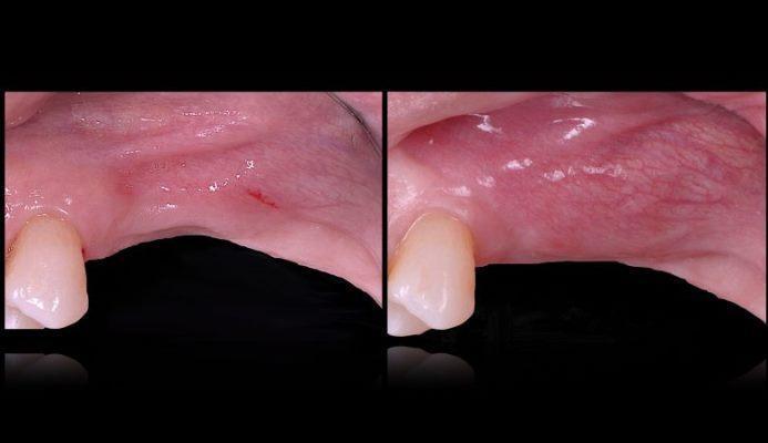 Техника F.I.R.S.T.: фибриноген-ассоциированная регенерация костной ткани в стоматологии