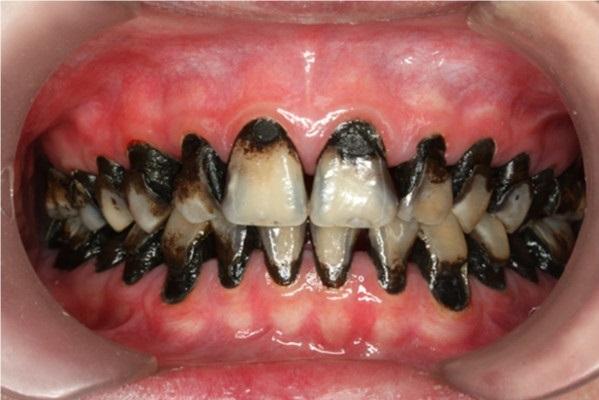 Добавление йодида калия препятствует изменению цвета реставраций из диамина фтористого серебра