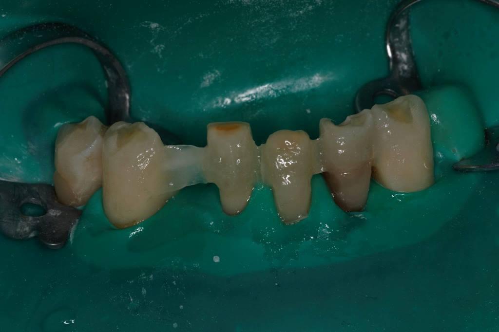 отбеливание зубов воронеж стоимость