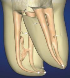 корневые каналы зуба