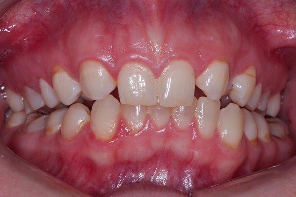 Конформативное протезирование из-за невозможности ортодонтического лечения