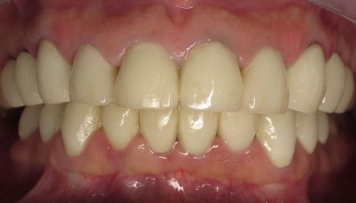 Замена коронок на 20 зубах