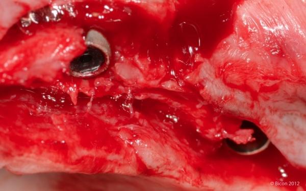 Установленные импланты после обрезки полиэтиленовых колпачков.