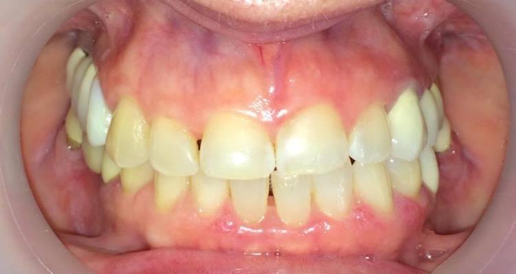 Комплексный подход в реабилитации верхней и нижней челюстей керамическими реставрациями