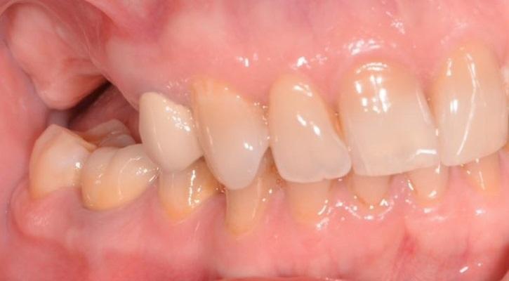 Установка имплантатов Hi-Tec в области адентии верхней челюсти