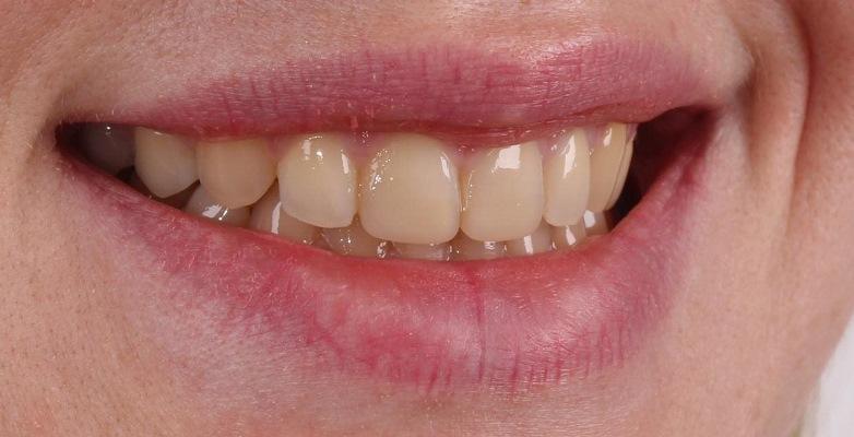 Эстетическая реабилитация 1.1, 2.1 зуба керамическими винирами