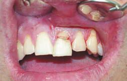Коронково-корневой перелом. Щель в коронковой части зуба имеет прямое сообщение с пульпой.