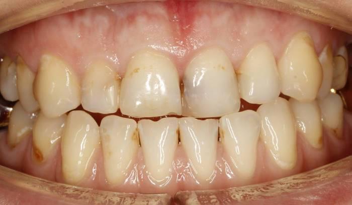 Художественная реставрация верхних фронтальных зубов с трансформацией и закрытием сагиттальной щели, выполненная методом биомиметики